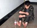 6 ngày liền chơi game, thanh niên bị nhiễm trùng chân, ngất lịm