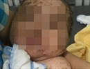 Tắm lá thuốc trị thủy đậu, bé trai 4 tháng tuổi bị nhiễm độc toàn thân