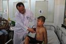 Gia tăng số trẻ bị mắc bệnh lý lõm ngực bẩm sinh