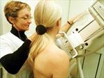 Các hóa chất hàng ngày tiềm ẩn nguy cơ gây ung thư vú