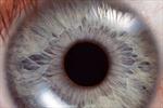 Tế bào gốc giúp ngăn chặn suy giảm thị lực