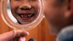 Anh: Giúp trẻ đánh răng ở trường học