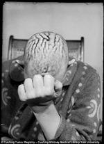 Ám ảnh những ca mổ não đầu thế kỷ 20
