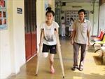 Nữ sinh Đắk Lắk phải cưa chân do y bác sĩ kém trình độ