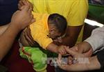 Giám sát trẻ sơ sinh mắc chứng đầu nhỏ ở Đắk Lắk