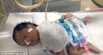 Thương tâm bé gái sơ sinh có tim đập ngoài lồng ngực