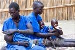 22 triệu trẻ em châu Phi sẽ chết đói nếu không được cứu trợ khẩn