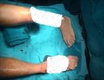 Sáu tiếng căng não cứu sống bệnh nhân bị tời xiết đứt rời hai bàn chân