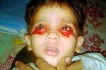 Mắc căn bệnh bí ẩn, cô bé 3 tuổi hàng ngày khóc ra máu