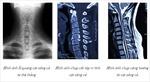 Bác sĩ 'mách' 5 dấu hiệu cần đi khám bệnh lý cột sống cổ