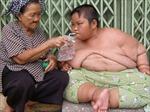 Cuộc chiến với béo phì ở Bệnh viện Việt Đức
