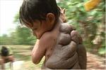 Cậu bé có chiếc mai rùa trên lưng