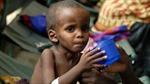 Một triệu trẻ châu Phi có nguy cơ tử vong vì suy dinh dưỡng