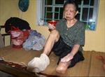 21 bệnh nhân phong kêu khóc vì bị bỏ đói