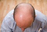 Đàn ông hói đầu dễ bị ung thư tiền liệt tuyến?
