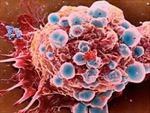 'Lộ mặt' chất điều chỉnh tốc độ di căn của tế bào ung thư