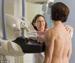 Vòng một to dễ bị ung thư vú?