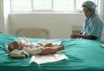 Bị bình nước sôi đổ lên người, bé 2 tháng tuổi tử vong