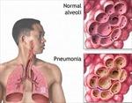 Canada bùng phát dịch viêm phổi