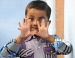 Cậu bé có 25 ngón tay và ngón chân