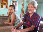 Đà Nẵng khám gần 24 ngàn lượt bệnh nhân phong