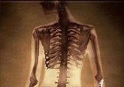 Phát minh mới biến mỡ thành... xương