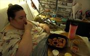 Người béo phì bị tiểu đường tuýp 2 nên phẫu thuật dạ dày