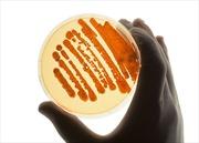 Mỹ phát hiện thêm vụ gửi nhầm mẫu phẩm bệnh than