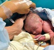 Mỹ thực hiện thành công ca cấy ghép tử cung đầu tiên