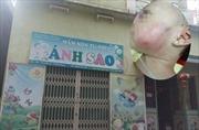 Hà Nội: Tạm dừng hoạt động trường mầm non để trẻ bầm tím mặt