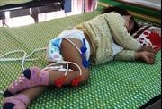 Chuyên gia lên tiếng trước kêu cứu trẻ liệt chân vì trị… viêm phổi