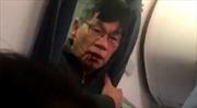 United Airlines đạt được thỏa thuận bồi thường với bác sĩ gốc Việt