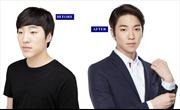 Nam giới Hàn Quốc chuộng 'dao kéo' để có gương mặt mỹ nam, thể hình vạm vỡ