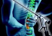 Mổ nội soi thoát vị đĩa đệm cột sống thắt lưng