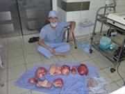 Cắt bỏ thành công khối u nặng 15 kg