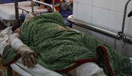 Thêm 2 nạn nhân tử vong trong vụ bỏng xăng tại Đắk Lắk