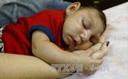 Hơn 1.700 trẻ sơ sinh Brazil bị teo đầu do virus Zika