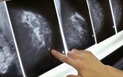 1/3 phụ nữ Mỹ bị điều trị ung thư vú 'oan'?