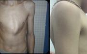 Bước tiến mới trong điều trị ngực lồi cho bệnh nhi
