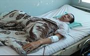 Người em trong cặp song sinh dính liền Việt-Đức lại phải phẫu thuật