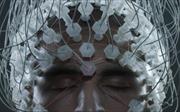 'Kích điện' giúp bệnh nhân chết não 'sống lại'