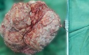 Bóc tách thành công khối u xơ nặng 4 kg cho nữ bệnh nhân