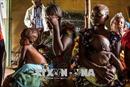 59 triệu trẻ em châu Phi bị suy dinh dưỡng, 10 triệu bị béo phì