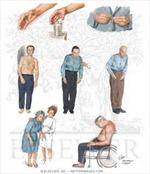 Bệnh Parkinson liên quan đến tỷ lệ sắt trong máu