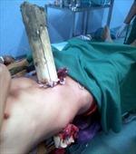 Cứu sống một bệnh nhân bị cây gỗ đâm xuyên qua người