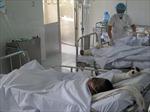 3 công nhân bỏng hóa chất nhuộm vải, nguy cơ mù mắt