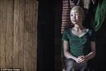 Nạn săn lùng người bạch tạng ở châu Phi