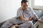 Bị máy xay thịt nghiền đứt lìa ngón tay, mất 4 giờ để vi phẫu nối