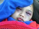 Bé gái bị bạo hành được đưa về Trung tâm BTXH Quảng Ngãi