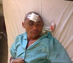 Cứu chữa bệnh nhân bị đạn bắn thủng hộp sọ